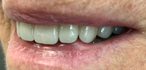 After Dental Treatment 3