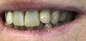 Before Dental Treatment 3