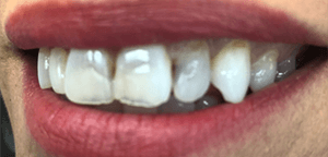 Before Dental Treatment 1